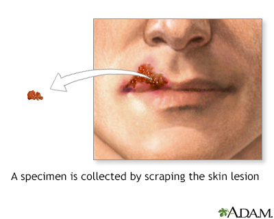 herpes viral culture of lesion