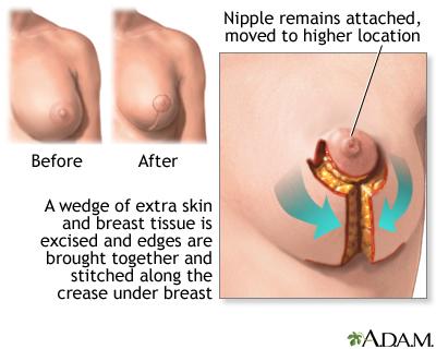 of tissue loss reasons breast