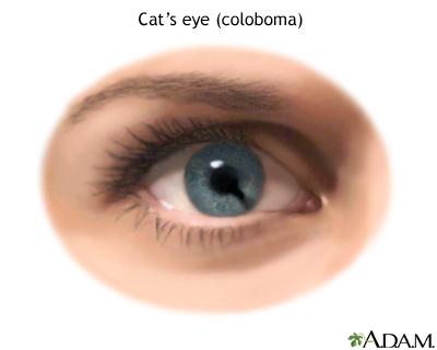 Cat Eye Pupil Problems