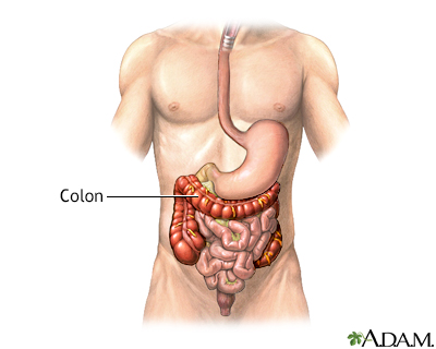 Colon diverticula - series