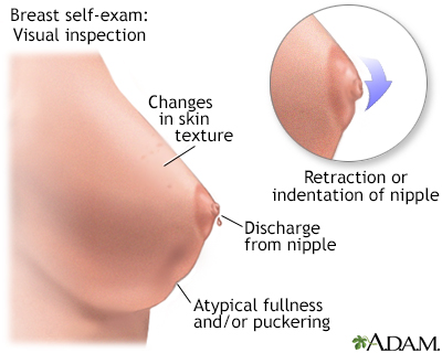 Me, Breast clear discharge in lump nipple soft