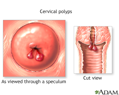 Sex to remove vaginal polyps