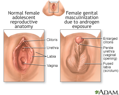 enlargement of female clitoris