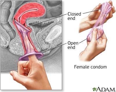 How successful are condoms