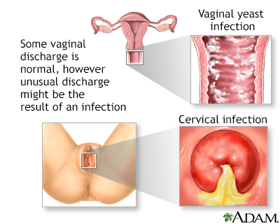 pasty vaginal secretion White