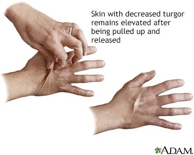 sc 1 st  ADAM & Skin turgor