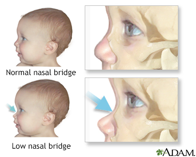 hurler syndrome disease Hurler syndrome is a rare, hereditary, lysosomal storage disease that arises from  a deficiency or absence of the enzyme iduronidase (idua), which is needed to.