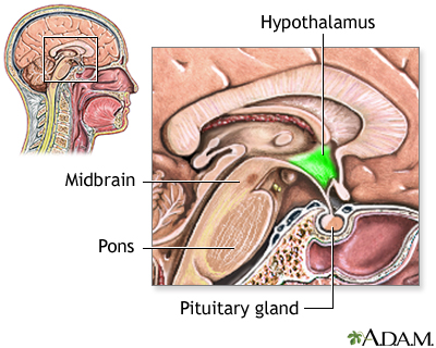 Hypothalamic dysfunction