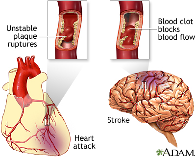 Content on Thrombotic And Embolic Stroke