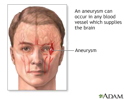 aneurysm in the brain, Human Body