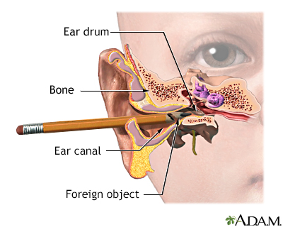 ear emergenciesInside Ear Drum Diagram #10