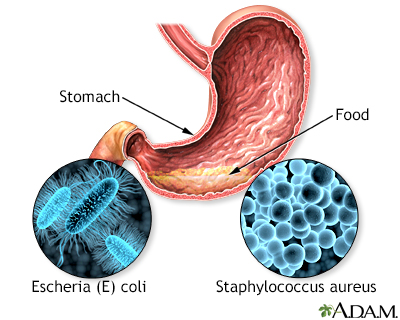 How Long After Does Food Poisoning Occur