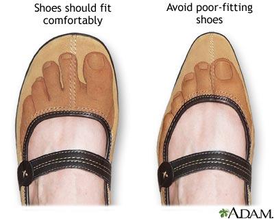 Diabetic Friendly Tennis Shoes