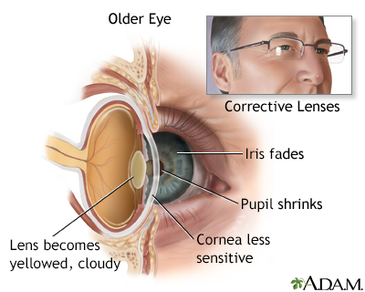 Aging Changes In The Senses