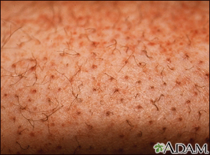 Causes of Purpura in adults - RightDiagnosis.com