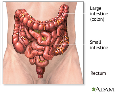 large bowel resection, Human Body