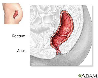 How to fix an anal prolapse