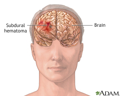 older adults rising risk subdural hematoma