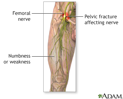 femoral nerve dysfunction, Muscles