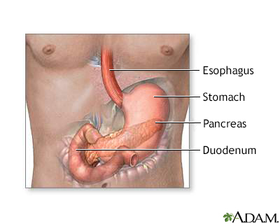 gallbladder surgery after failed laminectomy