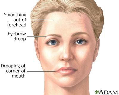 Attractive Facial Paralysis
