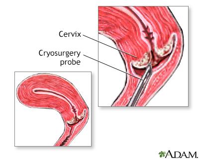 Cervix cryosurgery