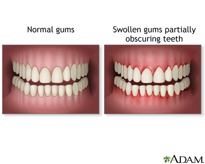 Herpetic stomatitis is a viral infection of the mouth that causes ulcers and ...