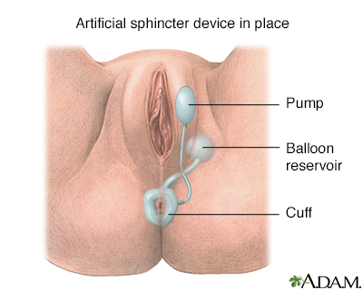 Anal sphincter problems