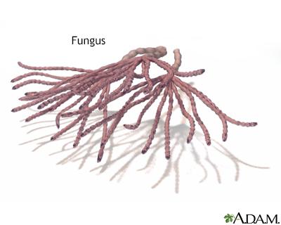 Pubic Ringworm