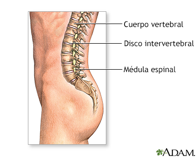 Artrodesis vertebral