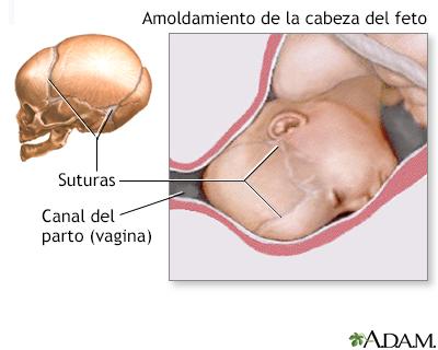 01da0015f Moldeamiento de la cabeza de un recién nacido