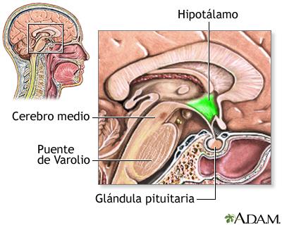 Disfunción hipotalámica