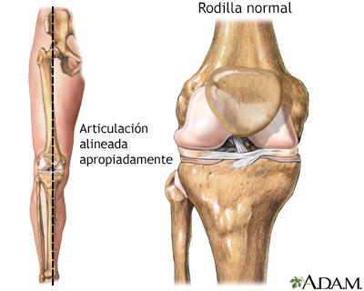Osteotomía de la rodilla