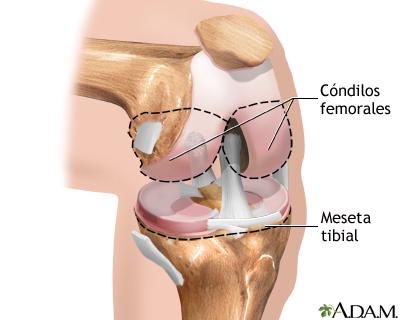 Reemplazo de la articulación de la rodilla