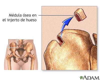 Medula Osea Transplante