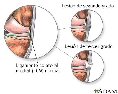 Atención postratamiento de una lesión del ligamento lateral (LL)