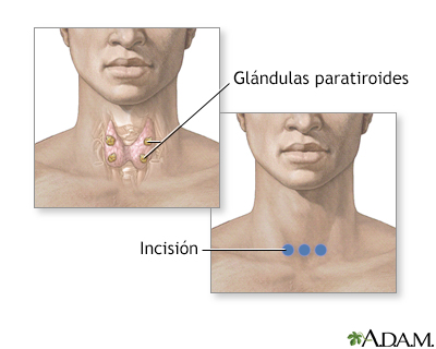 Biopsia de paratiroides