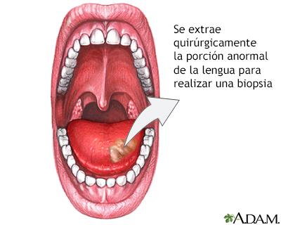 Biopsia lingual